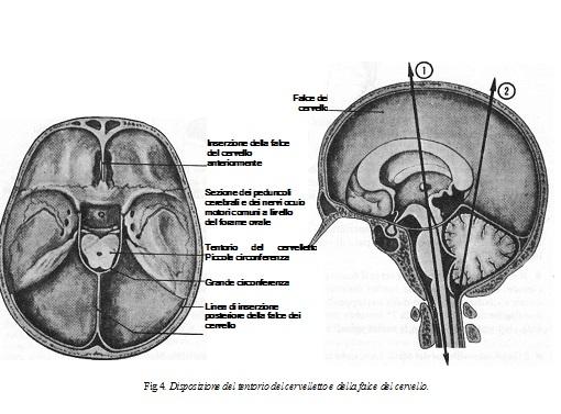 la disposizione del tentorio e falce nel cervello