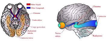 il nervo ottico come si presenta,anatomia e caratteristiche