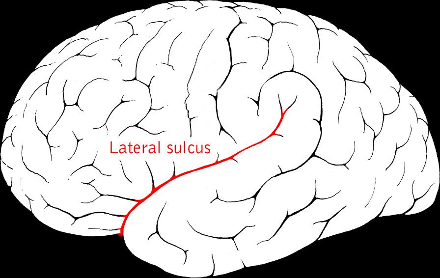La scissura silviana nelle demenze organiche come pick ed alzheimer